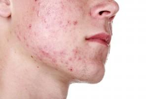 Acne-close-up