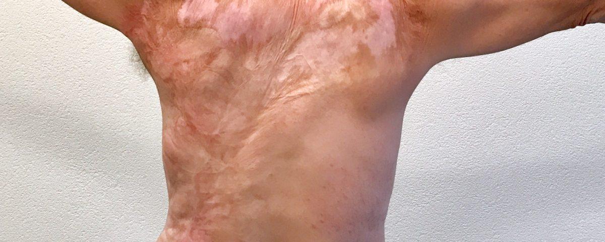 litteken op rug na brandwond