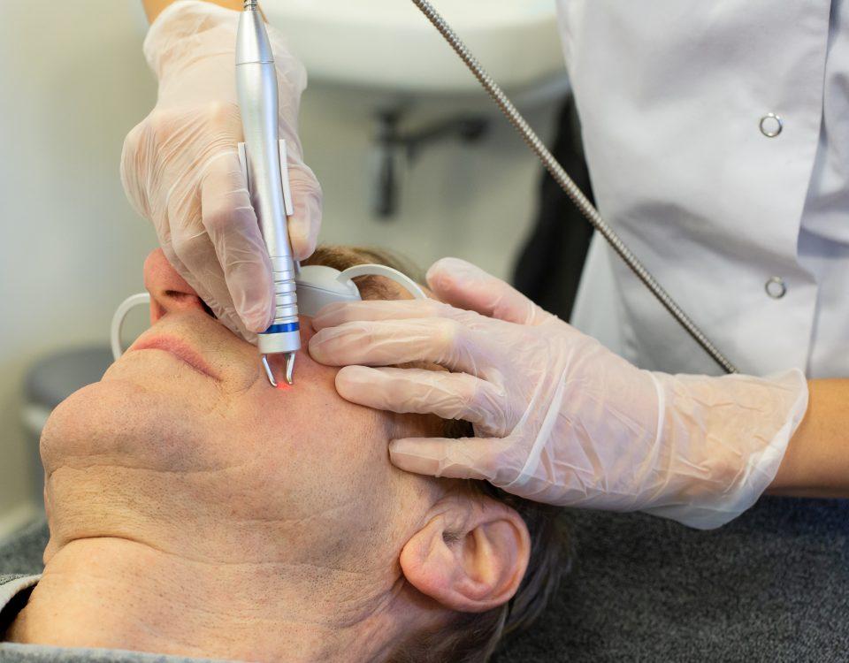 Lasertherapie huidoneffenheden