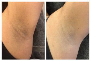 resultaat na 3 laserbehandelingen oksels 4YourSkin Huidtherapie2019