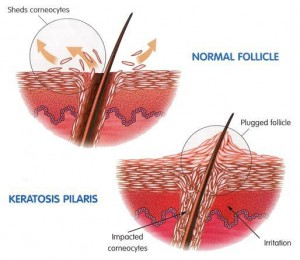 keratosis-pilaris-diagram_thumb_514x445
